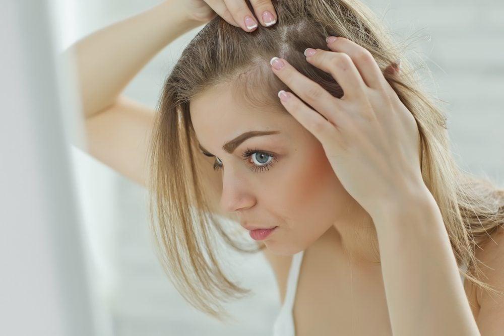 Chute des cheveux chez la femme enceinte