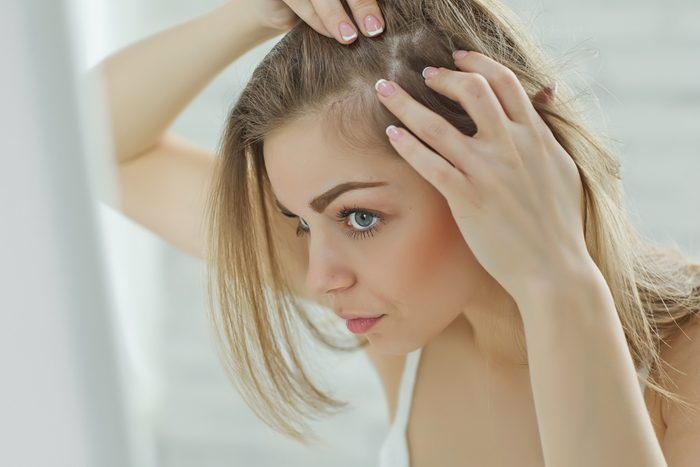Perte de cheveux chez la femme: les meilleurs remèdes, trucs et traitements.