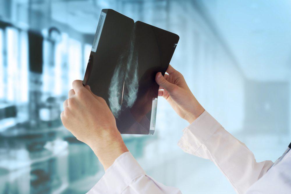 Masse dans le signe du sein du cancer du sein