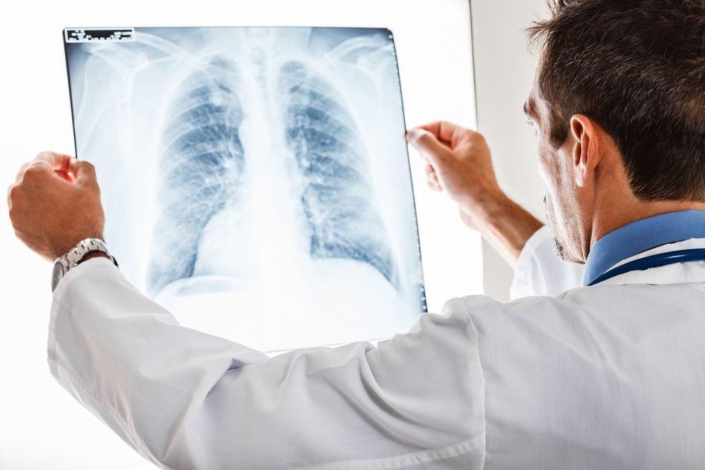 Une toux sans autres symptômes pourrait être un cancer du poumon.