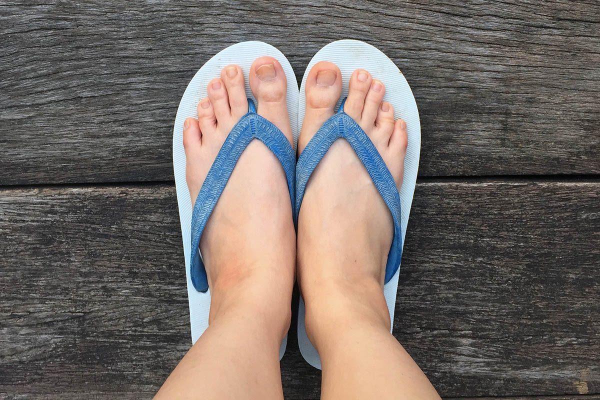 Soin des pieds : évitez les tongs et les ballerines.