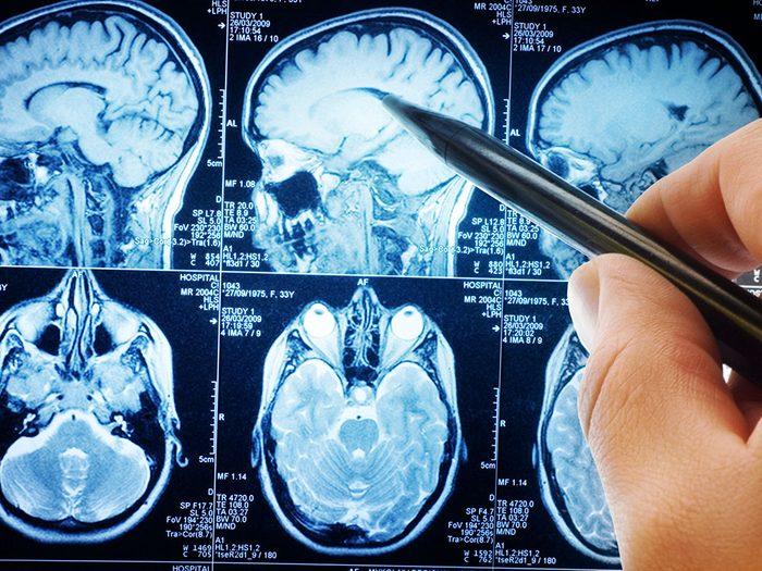 Les symptomes de la depression pourraient avoir un lien avec la maladie d'Alzheimer et la démence.