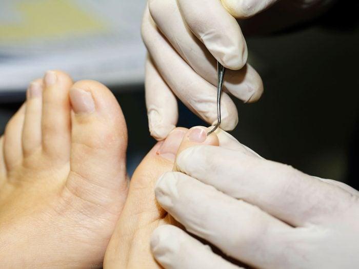 L'état des ongles peut révéler des problèmes de santé.