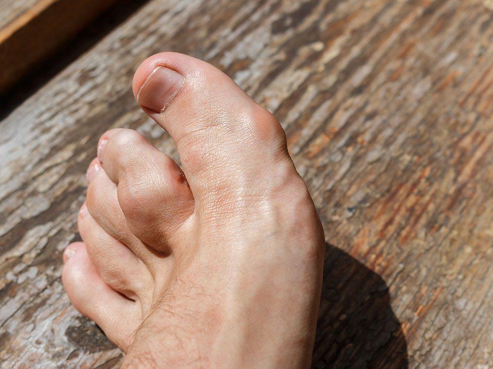 Le tophus est une manifestation classique des formes les plus évoluées de goutte.