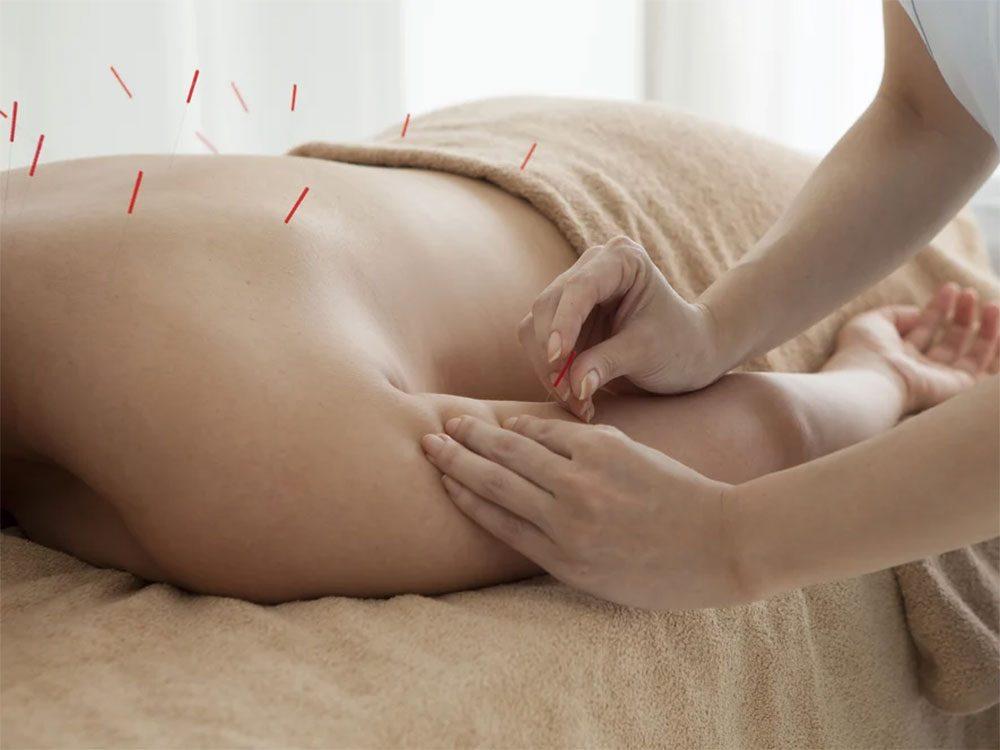 L'acupuncture peut soulager votre mal de dos.