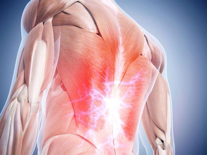 Le froissement des muscles, tendons et ligaments provoque votre mal de dos.