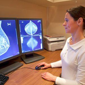 1. La majorité des cas de cancers sont entièrement aléatoires et ne sont pas causés par une mutation génétique du BRCA.