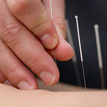 2. Envisagez l'acupuncture
