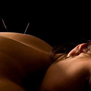 Rester en forme grâce à l'acupuncture