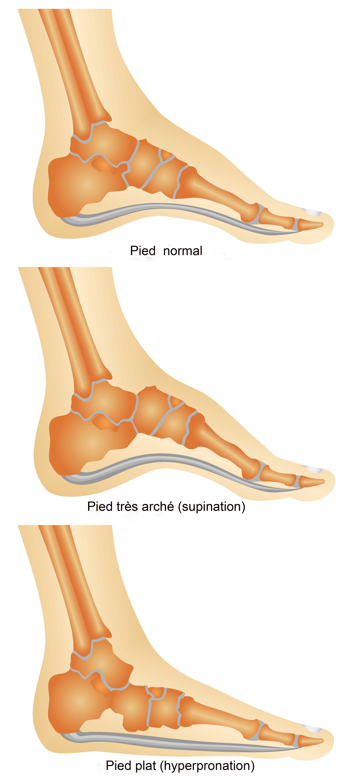 Quelle est la forme de votre pied?