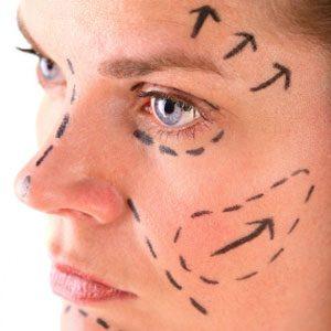 Resurfaçage de la peau au laser fractionné