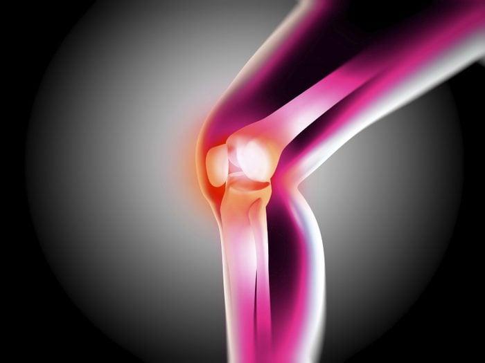 Les tests de densité osseuse pour l'ostéoporose