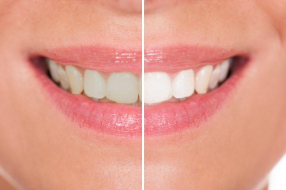 Erreur beauté: avoir les dents jaunes
