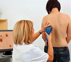 Consultez un dermatologue chaque année