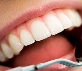 À quelle fréquence une personne doit-elle consulter son dentiste ?
