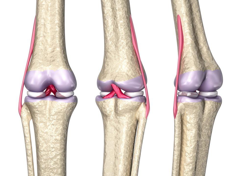 Blessures des ligaments