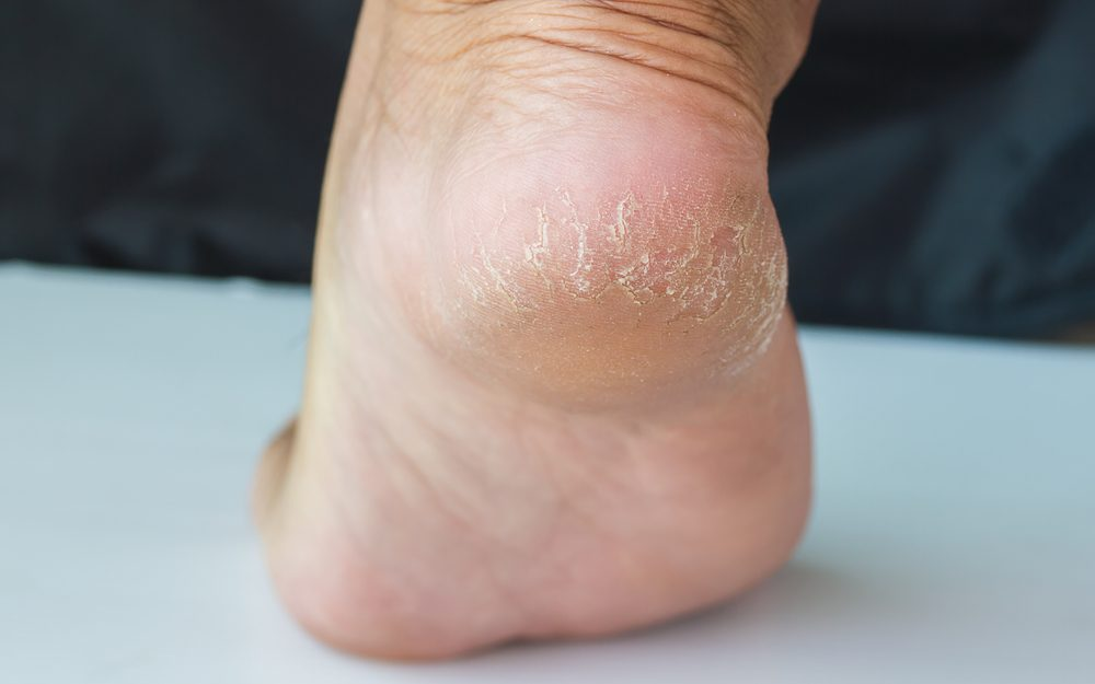 Le régime à atopitcheskom la dermatite chez lenfant 1 an