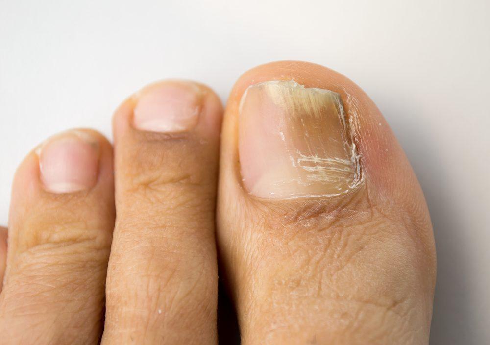 Vous constatez que la surface des ongles est criblée de trous