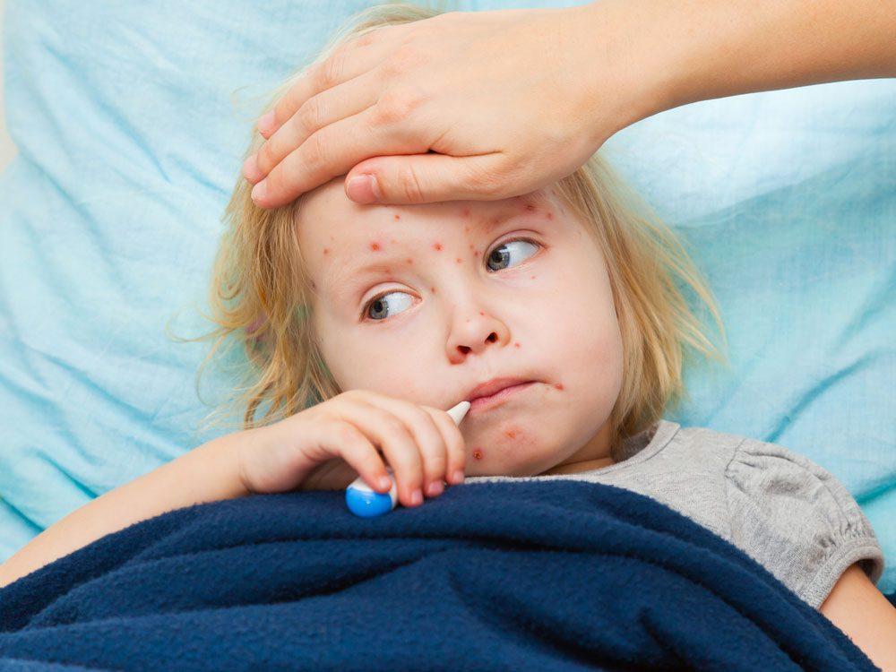 1. Traitement de la varicelle: restez au frais