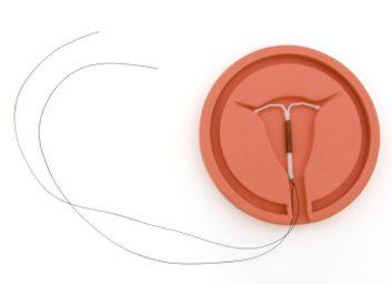 Méthode de contraception no.8: DIU (stérilets)