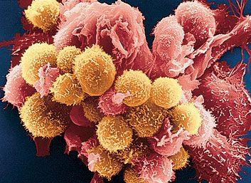 3. Elles empêchent la croissance de cellules cancéreuses.