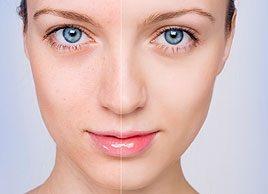 Trucs et remèdes naturels contre l'acné