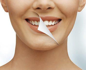 Banc d'essai : Blanchiment de dents chez Spa dentaire Laurier