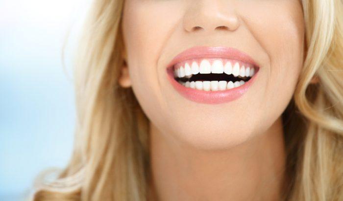 3. Faire le traitement de blanchiment dentaire dans un salon d'esthétique