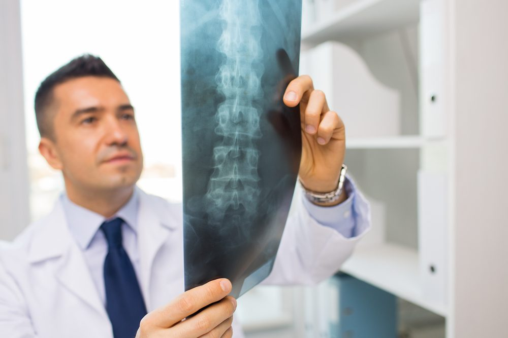 La chirurgie du dos