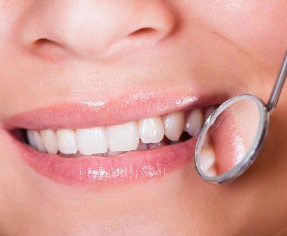 Obturations dentaires
