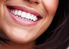 7 règles pour votre prothèse dentaire
