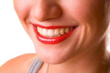 De quel pourcentage la fluoration réduit-elle les caries dentaires?