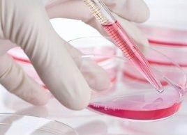 Les 5 cancers les plus mortels : ovaire