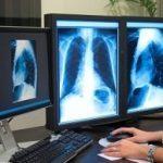 Les 5 cancers les plus mortels: poumon