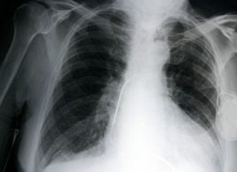 Cancer du poumon