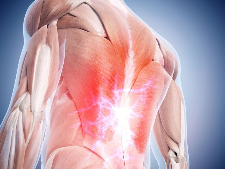 Le froissement des muscles, tendons et ligaments