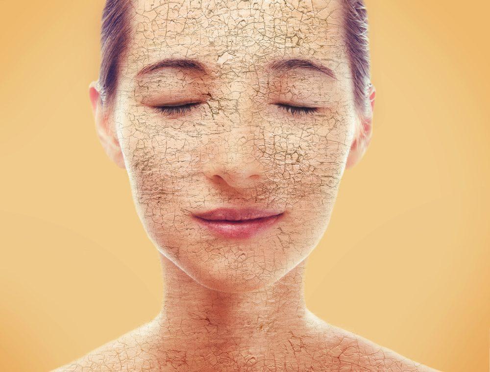 Problème de peau : plaques sèches