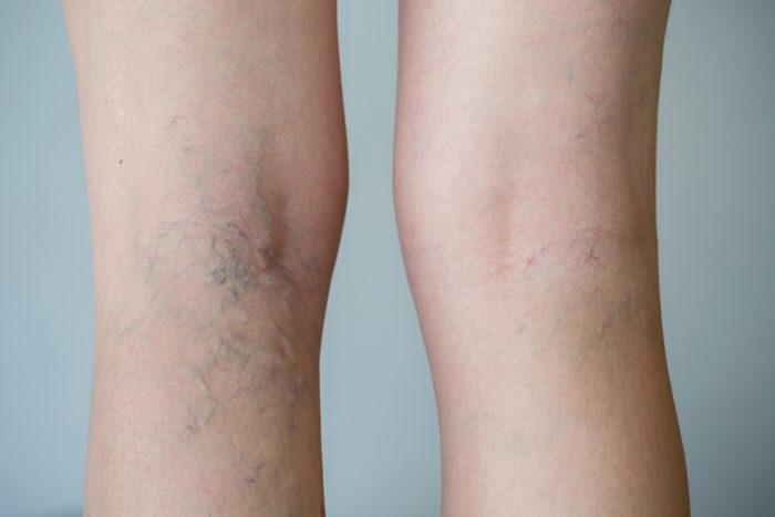 Problème de peau: la varicosités sur les jambes