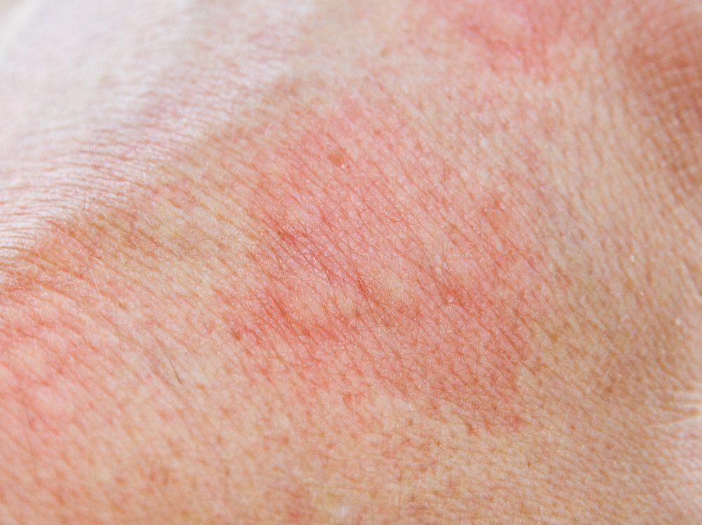 Problème de peau : sensibilité et rougeurs