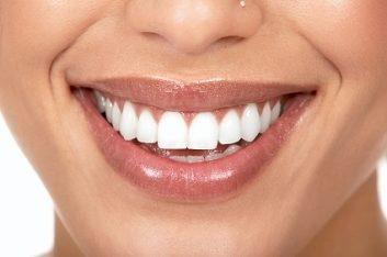1. Des dents blanches
