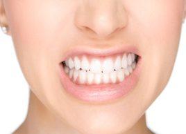 Devriez-vous faire extraire vos dents de sagesse?