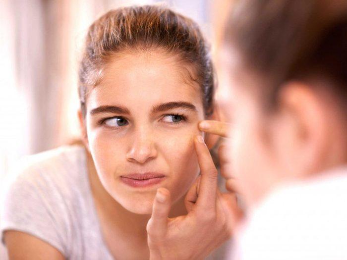 Manger trop de sucre peut provoquer de l'acné.