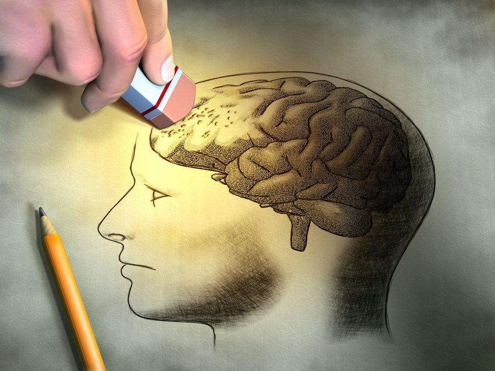 syndrome depression nerveuse