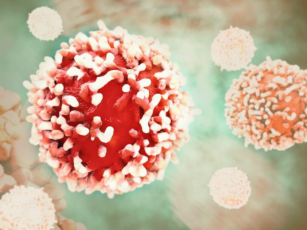 Le traitement hormonal de substitution accroît le risque de cancer.