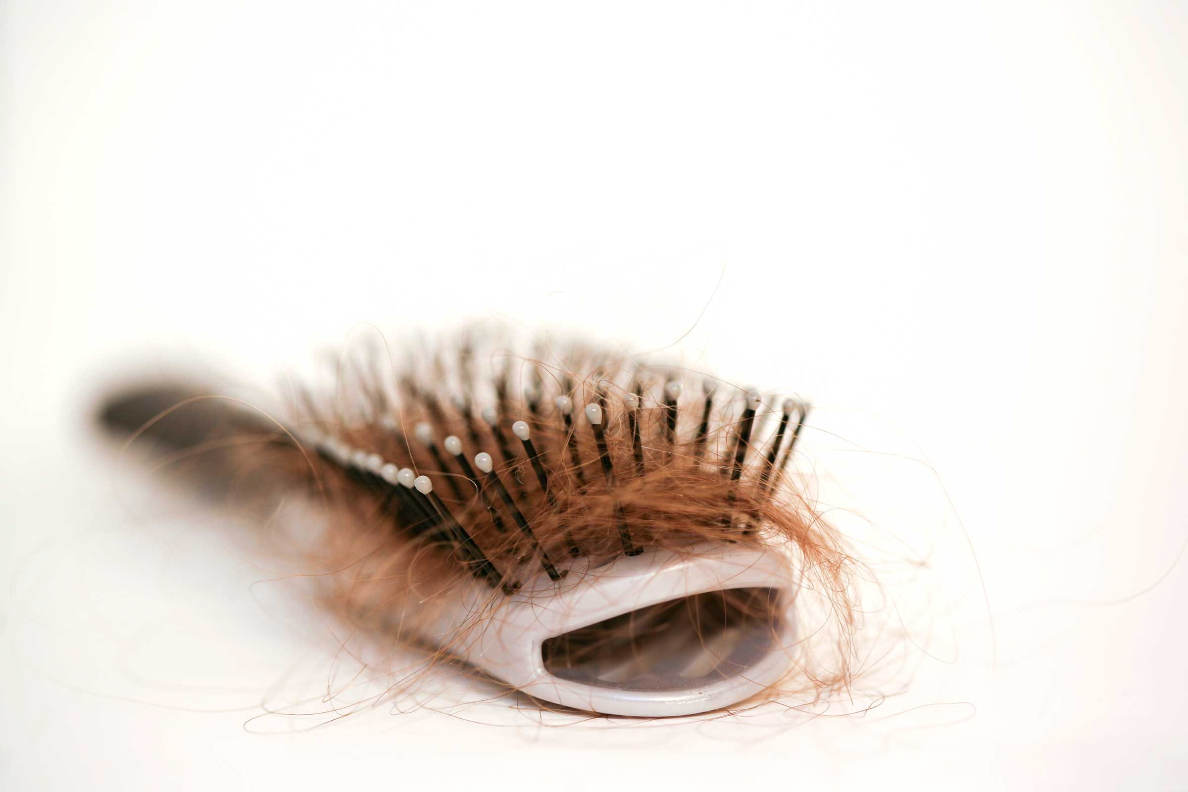 cheveux-stress-santé-vivre sainement