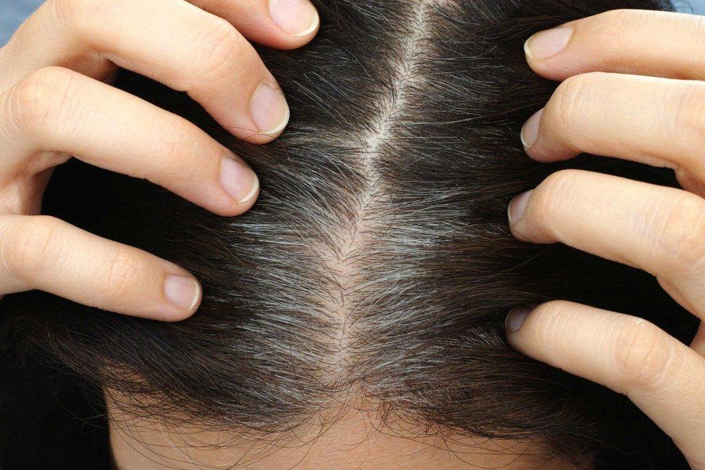 Grisonnement-cheveux-hormones