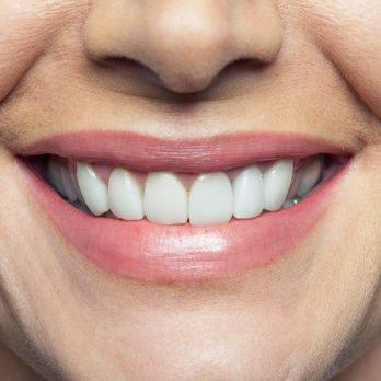 Problèmes de dents: ce que vos dents révèlent sur votre santé