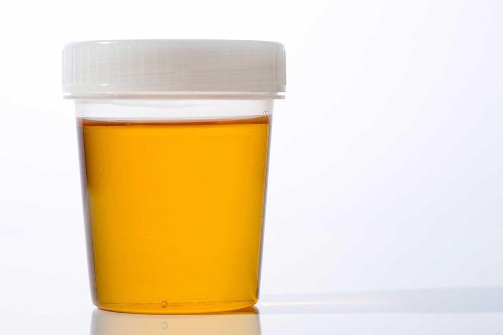 Vous souffrez d'une maladie du foie ou du pancréas