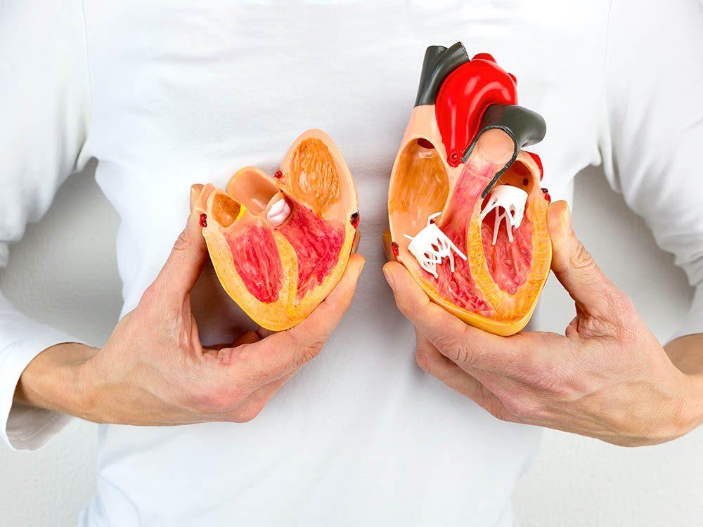 Artères bouchées : des signaux permettent de le détecter le plus tôt possible.