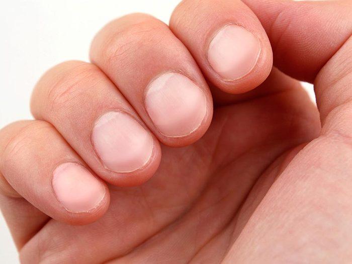 Les maladies prédites par les mains: problèmes au foie.